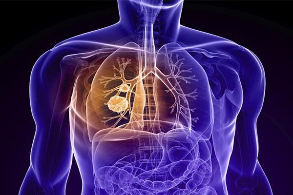 انسداد ریه یکی از عوارض لاغری