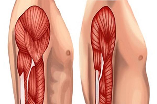 از دست دادن عضله ها یکی از عوارض لاغری